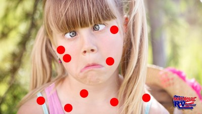 Weird kid with crossed eyes and red dots