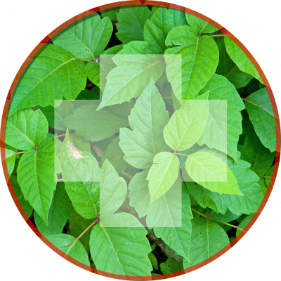 Common Camping Injuries : Poison Ivy